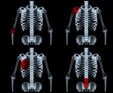 Free X-ray Royalty Free Stock Photos - 6325578