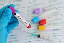Free HbA1c Test Royalty Free Stock Images - 70719739