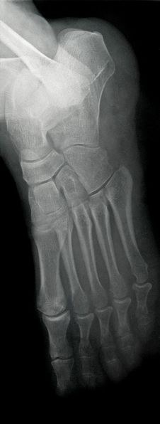 Free Lateral Foot X-ray Royalty Free Stock Photography - 7087497