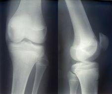Free X-ray Diagnostics/knee Royalty Free Stock Image - 8432056