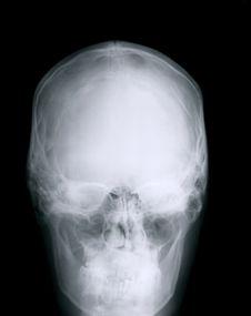 Free X-ray Skull Stock Image - 8594771