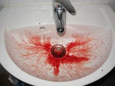 Free Nose Bleed Sink Story - 78 Stock Photo - 86177290