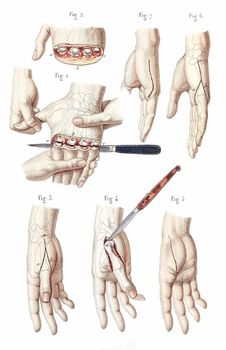 Free Disarticulation Of The Four Fingers Royalty Free Stock Photo - 92136925