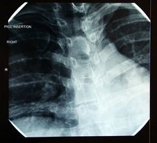 X-ray Of Correct Final PICC Line In Heart Royalty Free Stock Photo