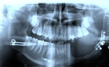 Free Mouth X-ray Stock Image - 9364271